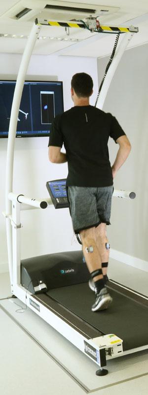 Ganganalyse auf dem Laufband | Klinische Laufanalyse