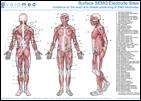 Poster für Ableitungspunkte der Muskeln für EMG